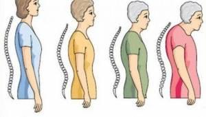 Dünya Osteoporoz Farkındalık Günü